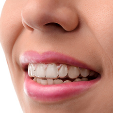 Invisalign Clear Aligners Auckland NZ
