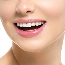 Composite Dental Veneers Auckland NZ